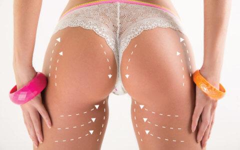La Chirurgie Esthétique des Fesses